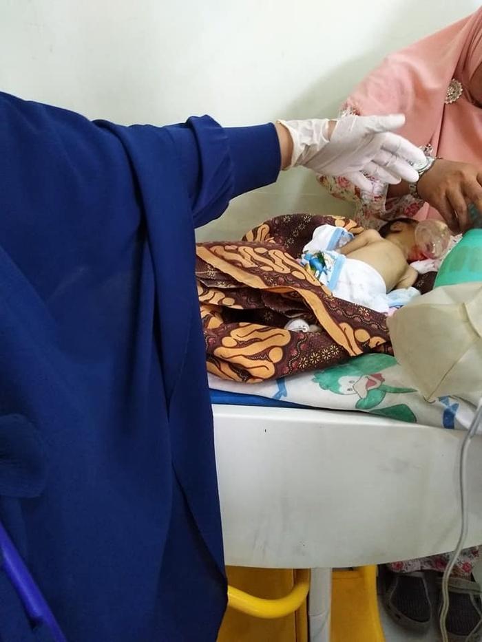 Bé sơ sinh tử vong vì bà nội bón cháo